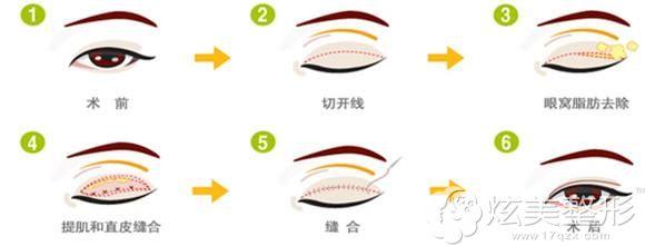 肿眼泡做切开双眼皮手术原理