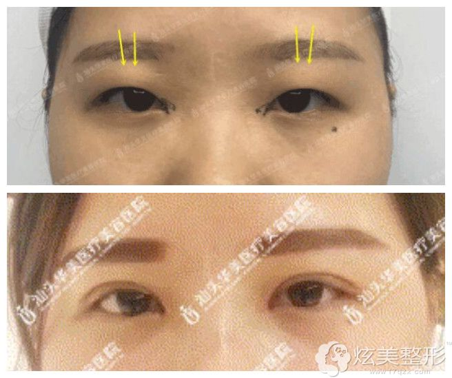 脂肪型肿泡眼在汕头华美做双眼皮案例