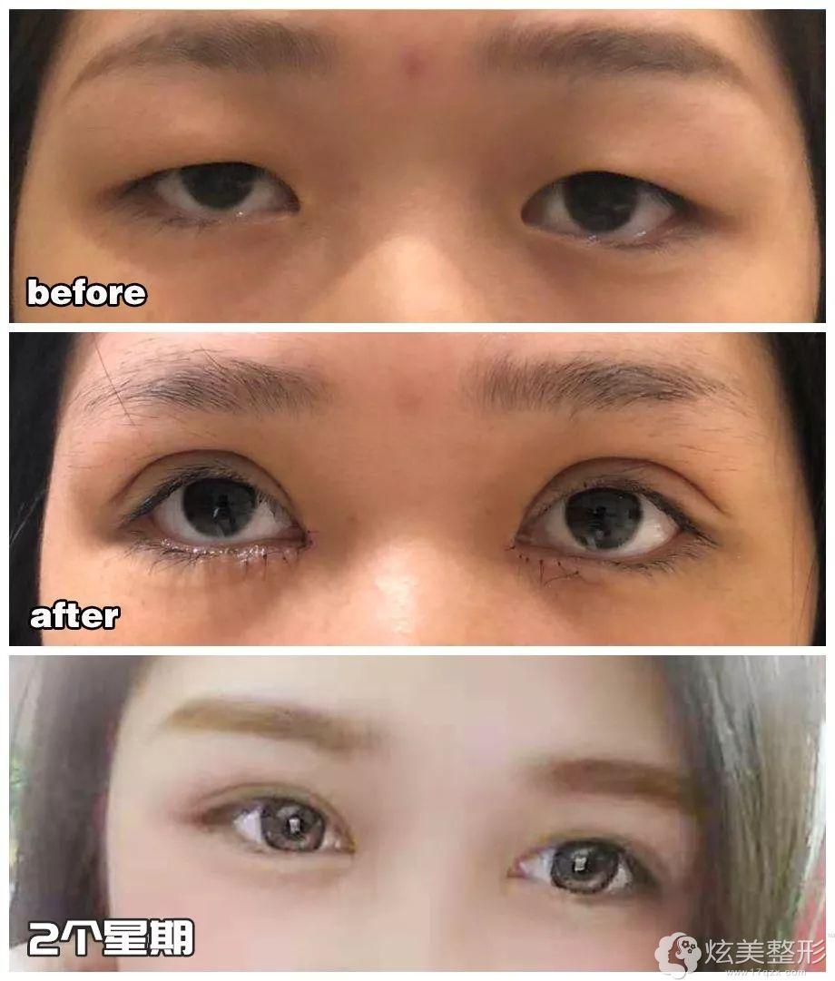 肌肉型肿泡眼在汕头华美做双眼皮