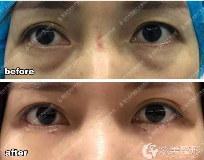 上睑松弛型肿泡眼在汕头华美做双眼皮案例