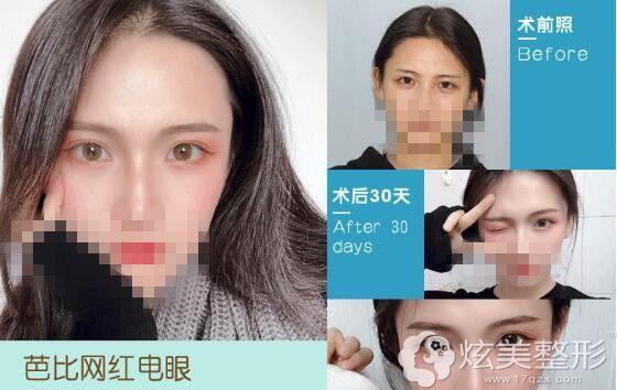 宁波鄞州薇琳双眼皮整形案例