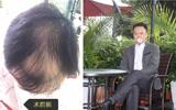 4级脂溢性脱发大叔经祝飞做无痕毛发移植术拥有浓密头发
