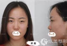 为了拯救线雕隆鼻术后变宽的鼻子我找李帅敏做鼻综合修复