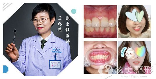 王林艳医生做牙齿矫正案例