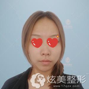 到芜湖伊莱美做鼻综合手术前自己的朝天鼻
