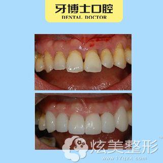 牙博士做瓷贴面术前术后对比效果