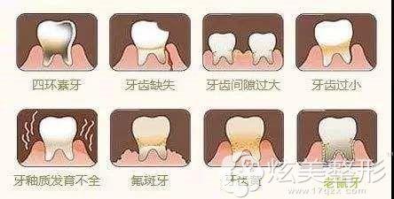 适合做牙齿贴面的几种牙齿状态