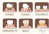 宁波牙博士今日解答牙齿贴面是否需要磨牙?价格贵不