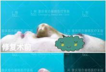 朋友在重庆联合丽格做过鼻修复后推荐我来做肋软骨鼻综合