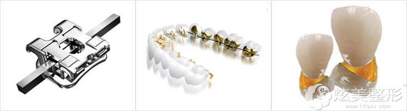 牙齿矫正的几种方法公开
