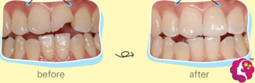 合肥华美医疗美容医院补牙案例