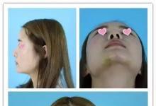 隆鼻失败山根假鼻孔大小不一,选乌鲁木齐伊丽莎白做修复
