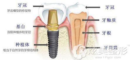 希思整形医生张超解说种植牙齿