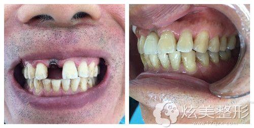 深圳希思张超医生种植牙齿案例