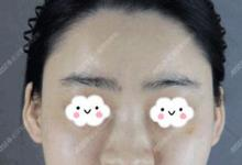 鼻子塌不旺夫?25岁的我到武汉爱思特做综合鼻整形改善