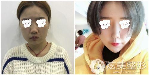 张玲医生在亚韩做埋线提升术后效果对比