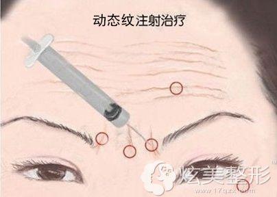 注射保妥适祛除动态皱纹的建议手术图