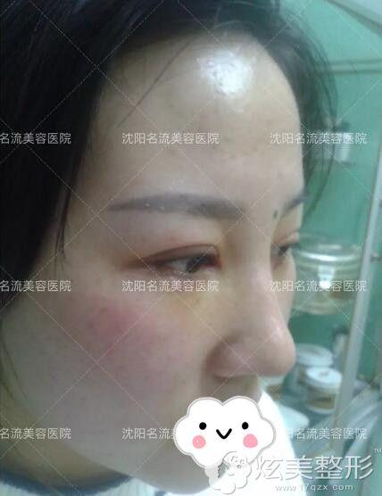 术后第四天眼鼻恢复情况