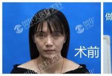 南宁贺尔美贺永奎的埋线提升术让我意外收获了瘦脸功效