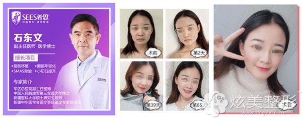石东文医生脂肪胶填充改善衰老案例