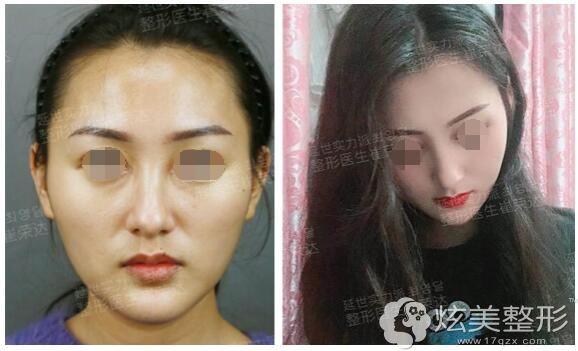 上海首尔丽格崔荣达颌面手术案例