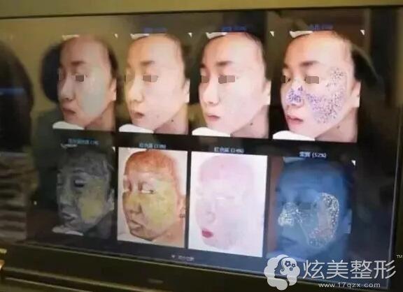 做美国VISIA皮肤检测面部斑点种类