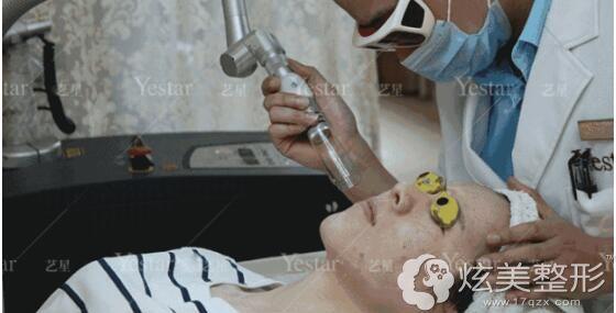 超皮秒祛斑体验过程中