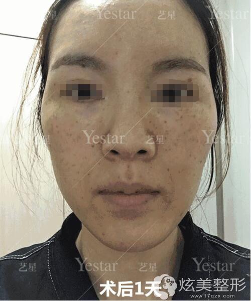 做完超皮秒祛斑术后第二天效果