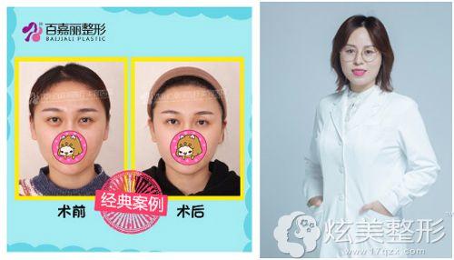 刘医在沈阳百嘉丽做内切去眼袋术后效果自然无痕