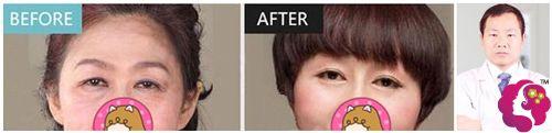 沈阳名流韩峰医生做内切去眼袋术前术后对比