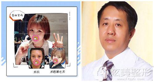 王医生做内切去眼袋术后恢复效果