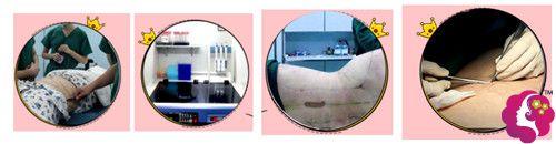 徐铎医生采用3D立体旋风吸脂手术过程