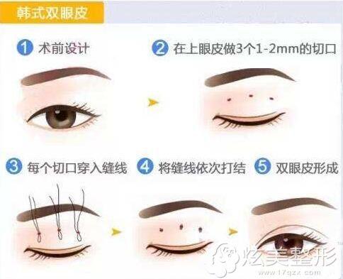 韩式三点双眼皮的手术方法