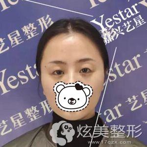 她到嘉兴艺星医疗美容门诊部面诊前的眼睛