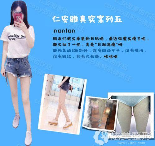 深圳仁安雅左大腿吸脂案例