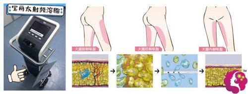 苗春来医生擅长采用宝丽太黄金射频溶脂仪来瘦大腿