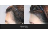 赴韩植发成热潮 想做毛发移植术李尚郁院长有5千真实案例