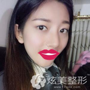 贾洪仁医生为我做埋线提升手术一周改善面部松弛效果显著