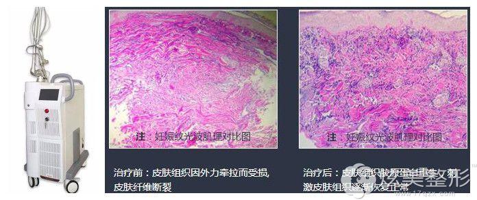 激光祛妊娠纹仪器和手术前后图