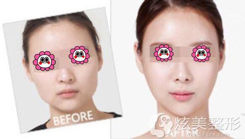 张朝蕾医疗美容诊所做激光溶脂瘦脸术前术后对比