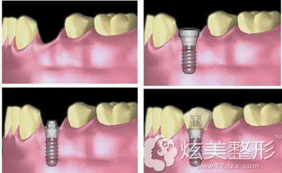 惠州致美口腔医院做微创种植牙过程