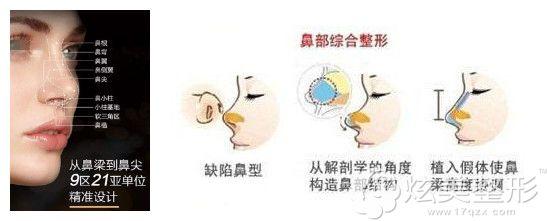 勇医生做丽都塔式综合鼻整形术过程