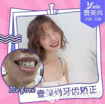 牙齿歪斜在合肥壹美尚做半隐形矫正案例