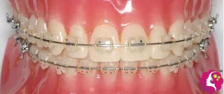 半隐形牙齿矫正托槽