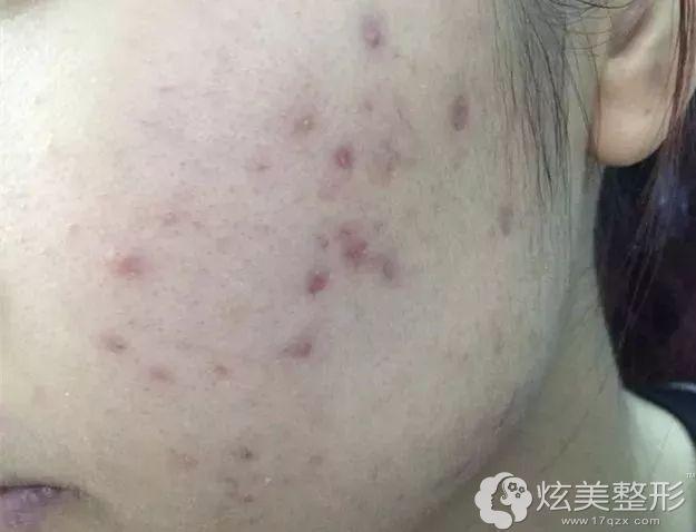 黑褐色痘印治疗可以刷酸