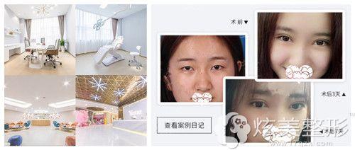 台州艺星美容医院做双眼皮手术案例