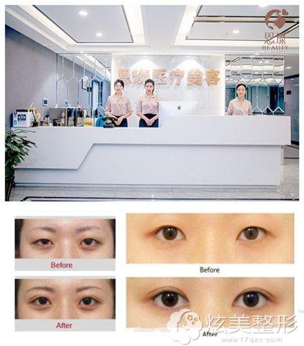 台州恩璨做双眼皮手术案例