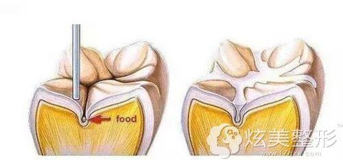 窝沟封闭的手术步骤简易图