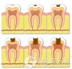 龋齿的形成原因