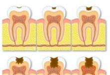 6岁乳牙龋齿等换牙就行?北京圣贝口腔提醒蛀牙必须治疗